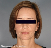 facial wrinkles after ActiveFX