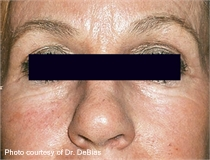 periorbital wrinkles after ActiveFX