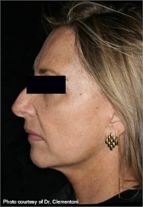Wrinkles pigmented skin after ActiveFX