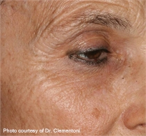 periorbital wrinkles before ActiveFX