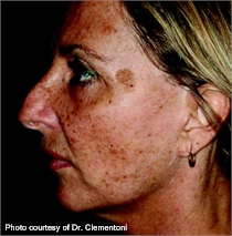 Wrinkles pigmented skin before ActiveFX