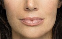 Fine lines and wrinkles After