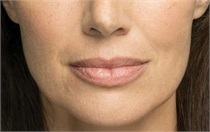 Fine lines and wrinkles Before