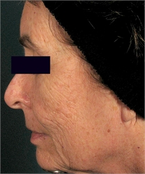 Deep facial wrinkles before DeepFX
