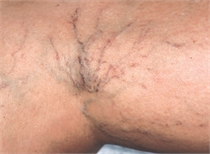 Leg veins before laser treatment