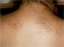 unwanted back hair before laser hair removal