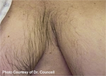 unwanted chest hair before laser hair removal