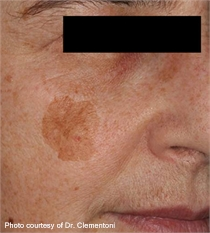 Keratosis brown spots before laser treatment