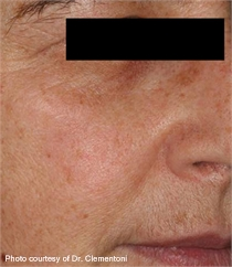 Keratosis brown spots after laser treatment
