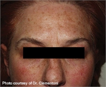 Mottled skin pigment before laser therapy