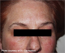 Mottled skin pigment after laser therapy