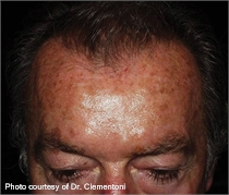 Pigmented skin before laser treatment
