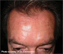 Pigmented skin after laser treatment