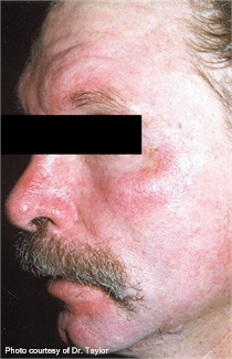 Rosacea before lumenis one laser treatment