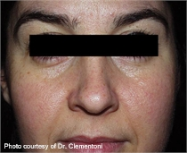 Rosacea after lumenis one laser treatment