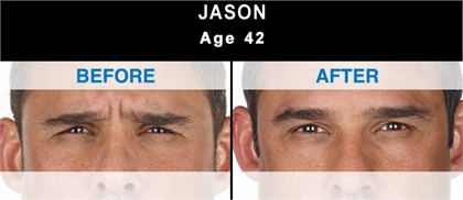 Fine lines and wrinkles Before and After